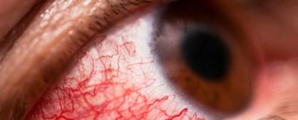 red-eye-560x390